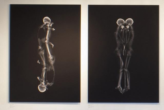 Intimate X-Ray Portraits of Couples by Ayako Kanda and Mayuk Hayashi  Intimate X-Ray Portraits of Couples by Ayako Kanda and Mayuka Hayashi Intimate X Ray Portraits of Couples by Ayako Kanda and Mayuka Hayashi mydesignweek2