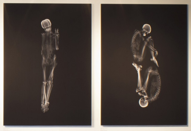 Intimate X-Ray Portraits of Couples by Ayako Kanda and Mayuk Hayashi  Intimate X-Ray Portraits of Couples by Ayako Kanda and Mayuka Hayashi Intimate X Ray Portraits of Couples by Ayako Kanda and Mayuka Hayashi mydesignweek3